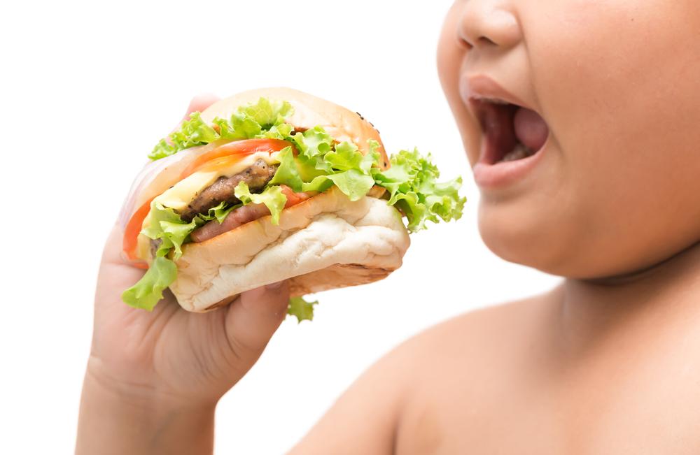 Makanan obesiti